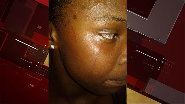 Facial injuries suffered by a 13-year-old student at Canyon Springs High School during an altercation on Oct. 12, 2016. (Source: FOX5)