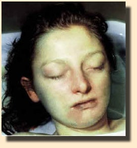 Authorities disclosed this photo of Jane Arroyo Grande Doe, which was taken during her autopsy. They hope a glimpse of her face will help people identify the slain victim. (Henderson Police)