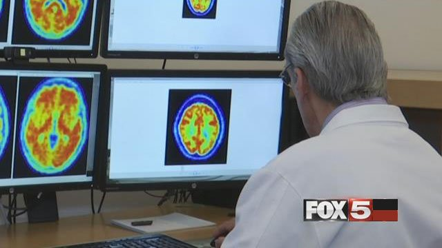 Dr. Jeffrey Cummings, of Cleveland Clinic Lou Ruvo Center for Brain Health, peers through MRI scans as part of the aducanumab trial. (FOX5)