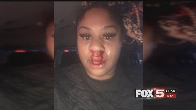 Mary Onuohah took this photo after a man punched her in the face outside of her workplace (FOX5).