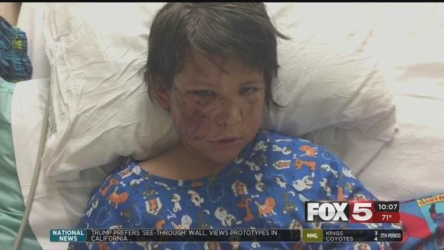 A boy returned home after his family said he was mauled by two pit bulls.
