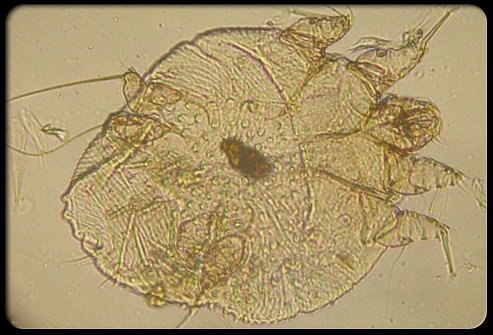 A female mite typically deposits two to three eggs in a narrow tunnel in the skin. (Courtesy of Dr. Dalia Wachs)