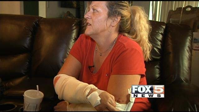 Tracy Mischel shows the injuries she sustained in a pit bull attack on Monday, Dec. 2 in Las Vegas. (FOX5)